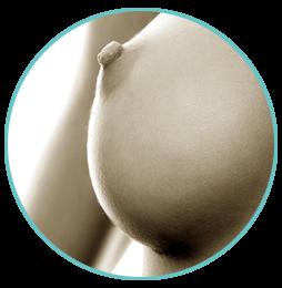 Увеличение груди (Маммопластика)