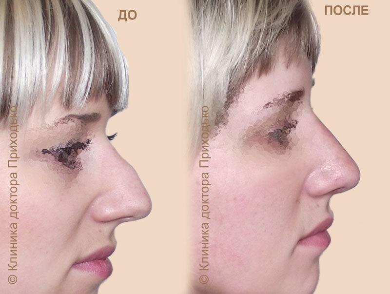 Операция по пластике носа